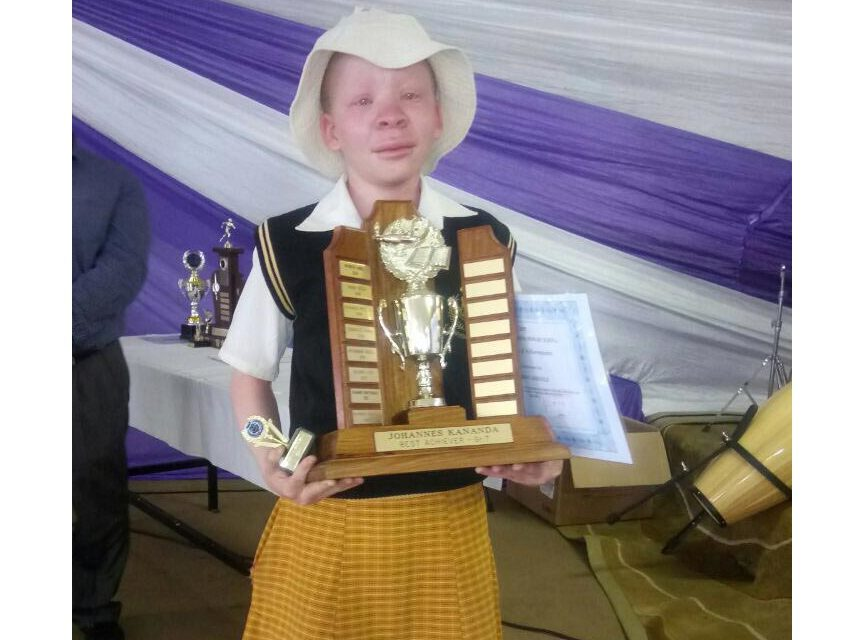 """Mayor: """"Cases of kidnapping kids with albinism rising in eMalahleni"""""""